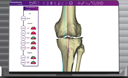 Fine-Osteotomy_1