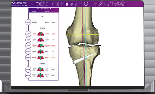 Fine-Osteotomy_2