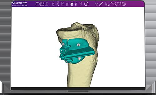 Fine-Osteotomy_4