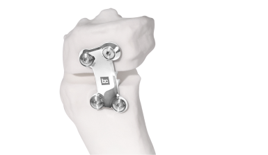Bodycad announces Health Canada approval for BC Fine Osteotomy™
