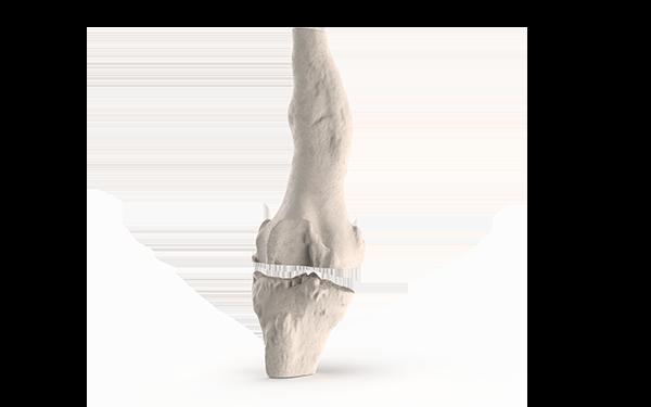 Knee-Post
