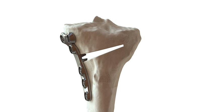 US FDA 510(k) clearance for BC Fine Osteotomy™